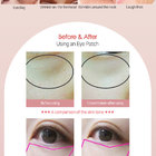 Gold Diamond Honey Rose Gold Hydro gel Eye Patch - a1ce9-05_5.jpg